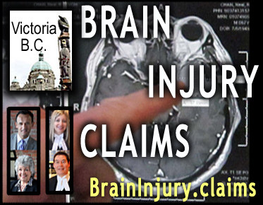 photo of MRI brain scan, with Victoria lawyers for acquired brain injury clients:  Lorenzo Oss-Cech, Bari Marlatt, Michael Mark and Charlotte Salomon, QC